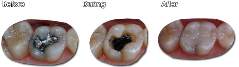 McGann Dental Services removing old Silver Mercury fillings with beautiful composite fillings.